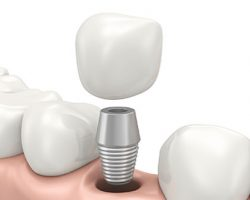 dental_implants_1 | Dr. Jennifer Perkins, DDS