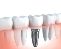 dental_implants_2 | Dr. Jennifer Perkins, DDS