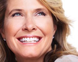 veneers_1 | Dr. Jennifer Perkins, DDS